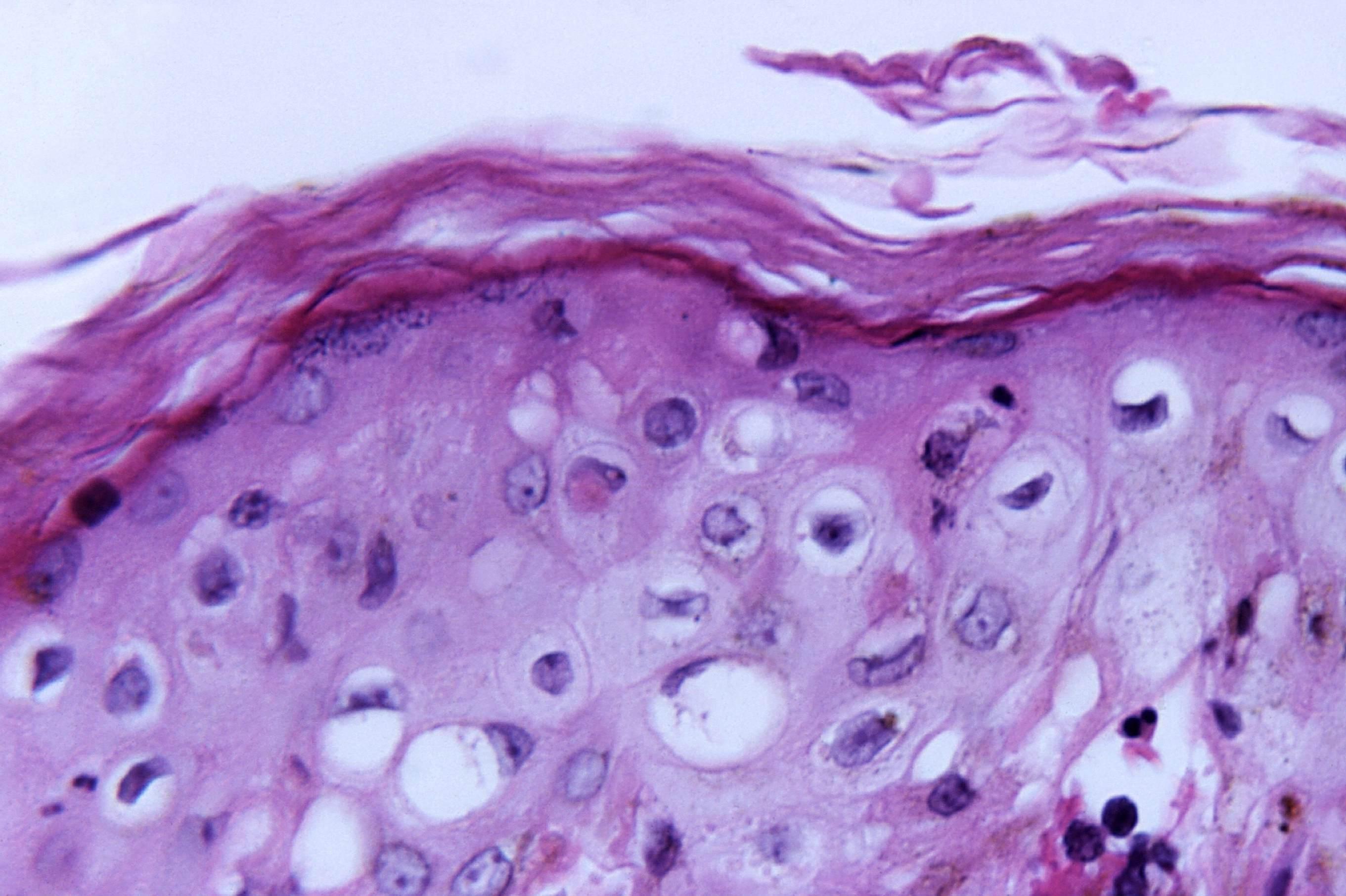 biofilms in the skin